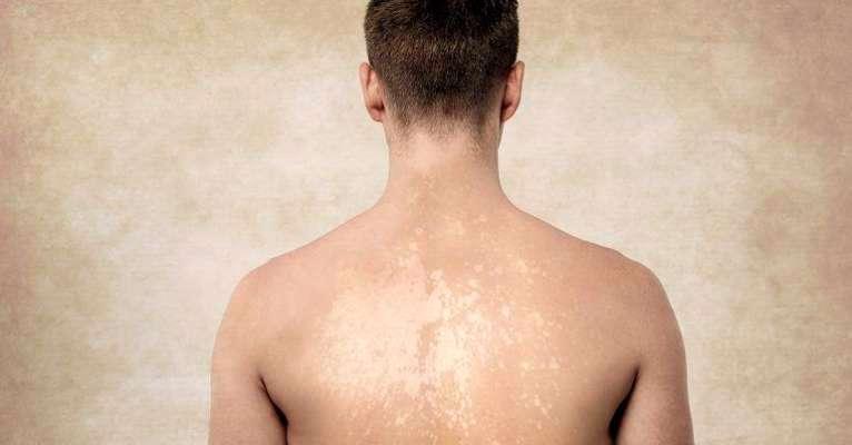 Tinea Versicolor – Cause, Symptom, Diagnosis & Treatment.