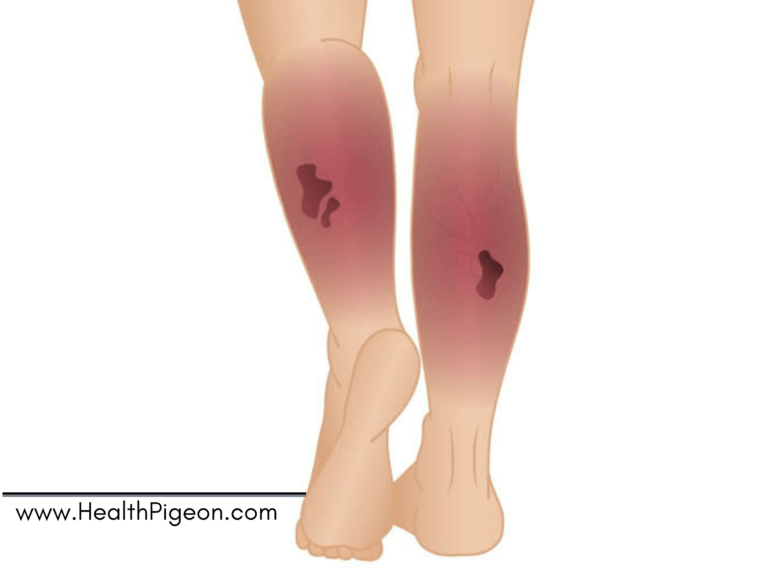 Necrotizing Fasciitis: Causes, Risk factors, Symptoms and Treatment.